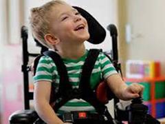 طرح تحقیقاتی درمان فلج مغزی اطفال با سلول های بنیادی اجرایی شد